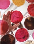 Petri Dish Culture