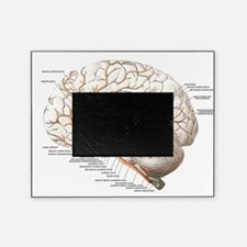 Circulation of the Brain Picture Frame
