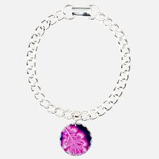 Kirlian image of oak lea Bracelet