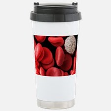 Red and white blood cells, SEM Stainless Steel Tra