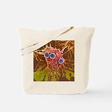 T lymphocytes and cancer cells, SEM Tote Bag