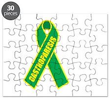 Gastroparesis-Hope-blk Puzzle