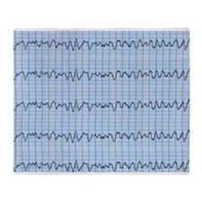 Cardiac V-Fib 2 Throw Blanket