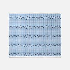 Cardiac V-Fib 2 Throw Blanket