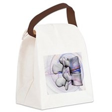 LumbBlu1 Canvas Lunch Bag