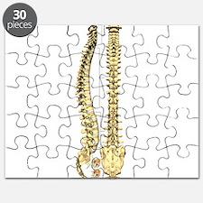 AP-Lat Spine Puzzle