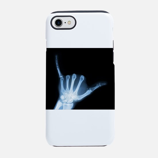 Shaka Hand Sign X-ray ALOHA iPhone 7 Tough Case