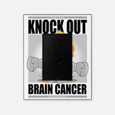 Knock-Out-Brain-Cancer Picture Frame