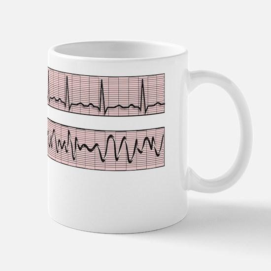 EKG Strips FUCK SYMBOLS Mug