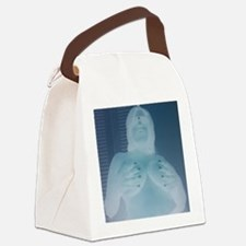 naked lady Canvas Lunch Bag