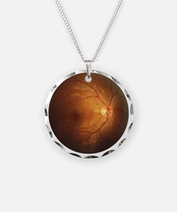 Fundus_of_eye_normal Necklace
