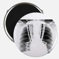 Ribshot Disc Catcher Magnet