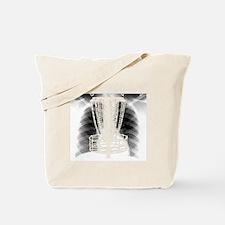 Ribshot Disc Catcher Tote Bag
