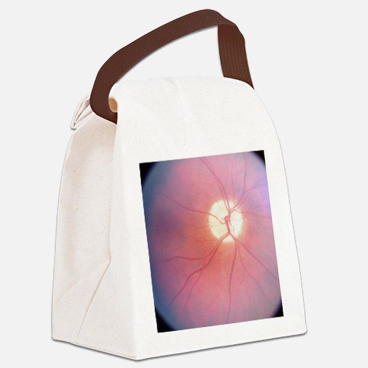 Optic Nerve T-Shirt 4 Doctors Canvas Lunch Bag