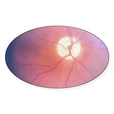 Optic Nerve T-Shirt 4 Doctors Decal