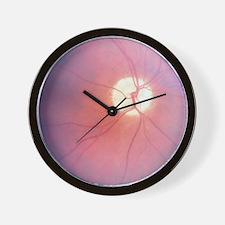 Optic Nerve T-Shirt 4 Doctors Wall Clock