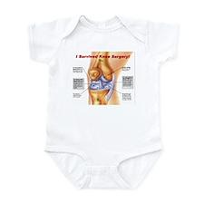 Knee Surgery Gift 11 Infant Bodysuit