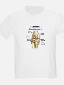 Knee Surgery Gift 10 T-Shirt