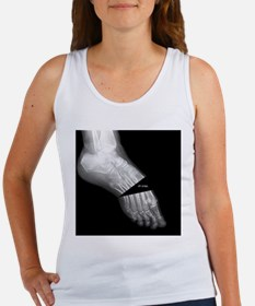 broken_foot_xray_oh_snap Women's Tank Top