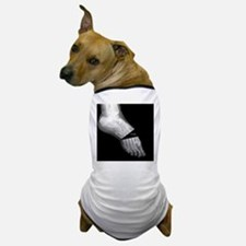 broken_foot_xray_oh_snap Dog T-Shirt