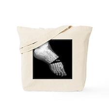 broken_foot_xray_oh_snap Tote Bag
