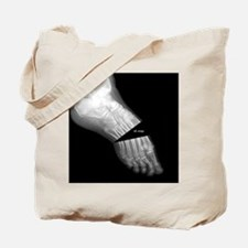 broken_foot_xray_oh_snap Tote Bag