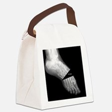 broken_foot_xray_oh_snap Canvas Lunch Bag