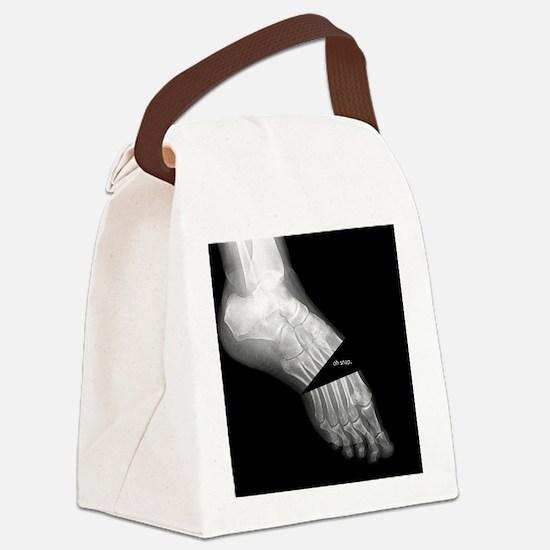 broken_foot_xray_oh_snap Canvas Lunch Bag