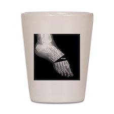broken_foot_xray_oh_snap Shot Glass