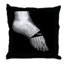 broken_foot_xray_oh_snap Throw Pillow