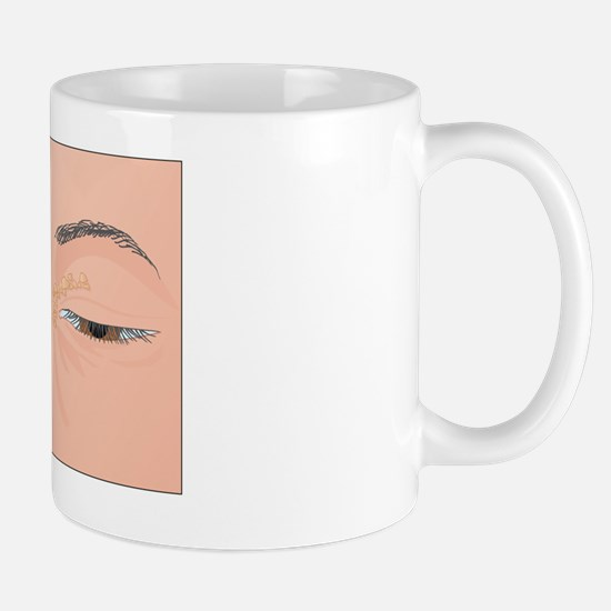 Xanthelasma growths, artwork Mug