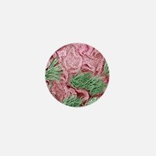 Uterine cancer, SEM Mini Button