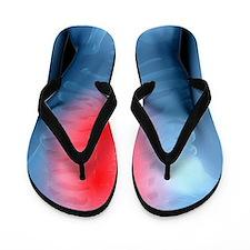 Upper back pain, conceptual artwork Flip Flops