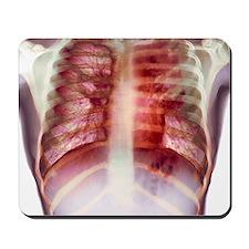 Tuberculosis, X-ray Mousepad