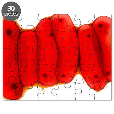 Tuberculosis bacteria, TEM Puzzle
