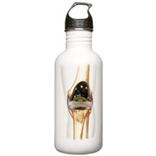 Total knee replacement Water Bottle