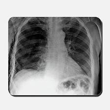 Tension pneumothorax, X-ray Mousepad