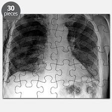 Tension pneumothorax, X-ray Puzzle