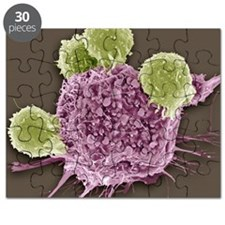 T lymphocytes and cancer cell, SEM Puzzle