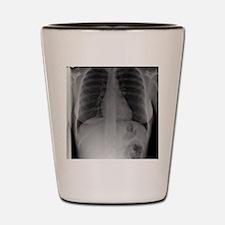 Swallowed toothbrush, X-ray Shot Glass