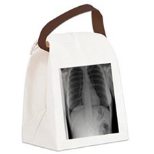 Swallowed toothbrush, X-ray Canvas Lunch Bag