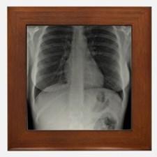 Swallowed toothbrush, X-ray Framed Tile