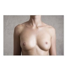 breasts of naked young wo Postcards (Package of 8)