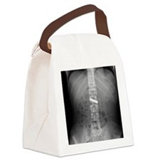 Swallowed battery, X-ray Canvas Lunch Bag