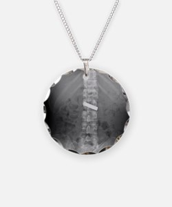 Swallowed battery, X-ray Necklace