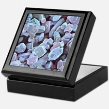 Sugar crystals, SEM Keepsake Box