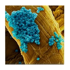 Streptococcus pneumoniae bacteria, SE Tile Coaster