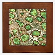 Spleen cells, TEM Framed Tile