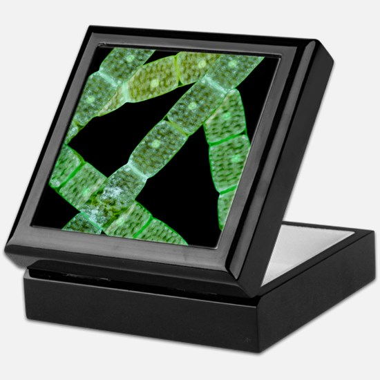 Spirogyra algae, light micrograph Keepsake Box
