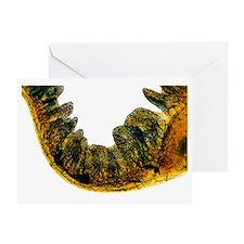 Small intestine, light micrograph Greeting Card